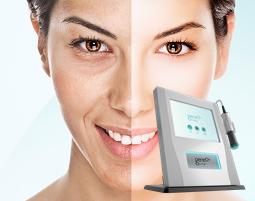laser oxyGeneo+® ekspresowa pielęgnacja 3w1